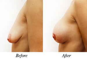 Breast lift&augmentation - Patient 18