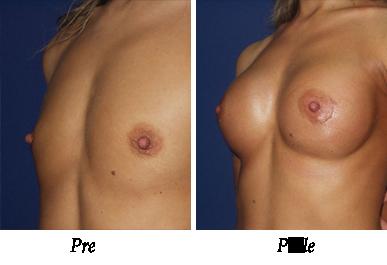 Pre i nakon uvećanja grudi - Pacijent 02