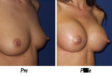 Pre i nakon uvećanja grudi - Pacijent 01
