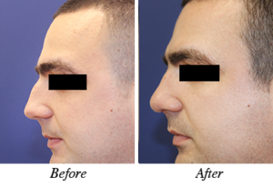 rhinoplasty -before-after
