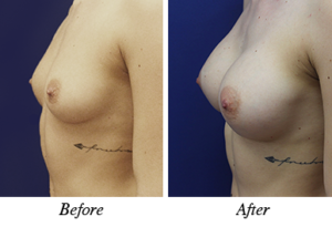 breast augmentation - patient 13