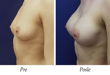 pre i nakon uvećanja grudi - pacijent 13
