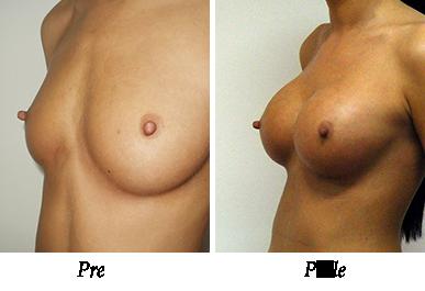 Pre i nakon uvećanja grudi - pacijent 06