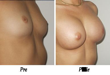 Pre i nakon uvećanja grudi - pacijent 07