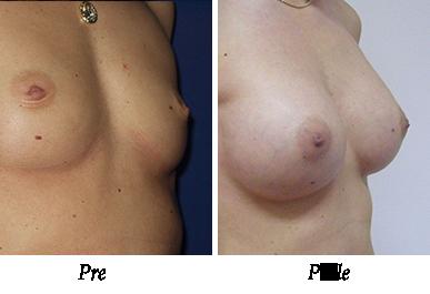 Pre i nakon uvećanja grudi - pacijent 08