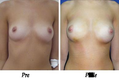 Pre i nakon uvećanja grudi - pacijent 04