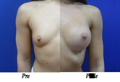 Pre i nakon uvećanja grudi - pacijent 05