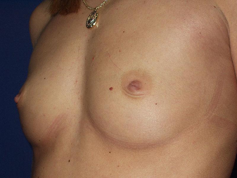 Uvećanje grudi - Pacijent 5