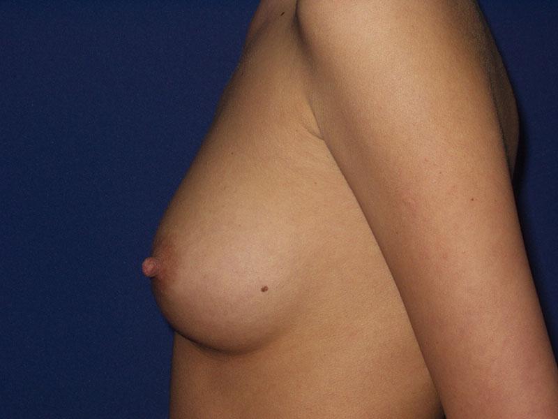 Uvećanje grudi - Pacijent 3