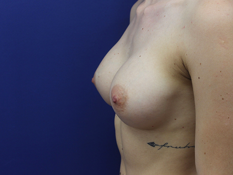 Breast Augmentation – Patient 13