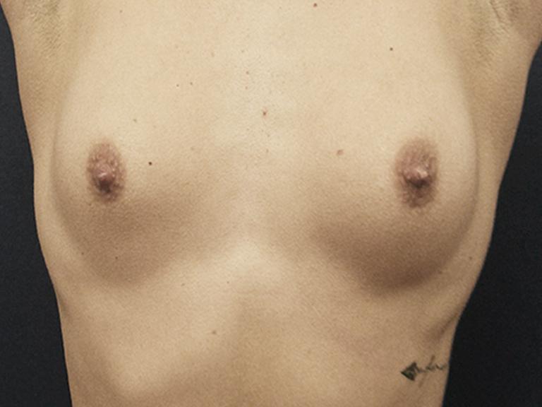 Breast Augmentation – Patient 13