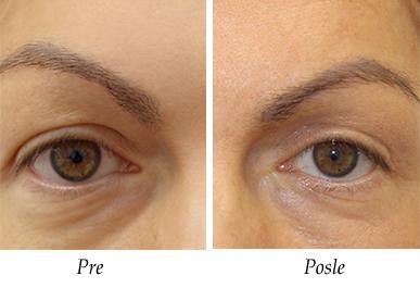 Pacijent 2 - Pre i posle operacije kapaka