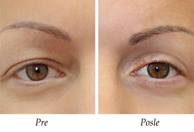Pacijent 3 - Pre i posle operacije