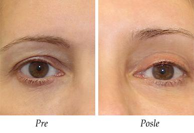 Pacijent 4 - Pre i posle operacije kapaka