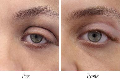 Pacijent 5 - Pre i posle intervencije