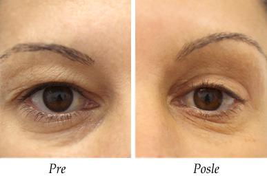 Pacijent 6 - Pre i nakon korekcija kapaka