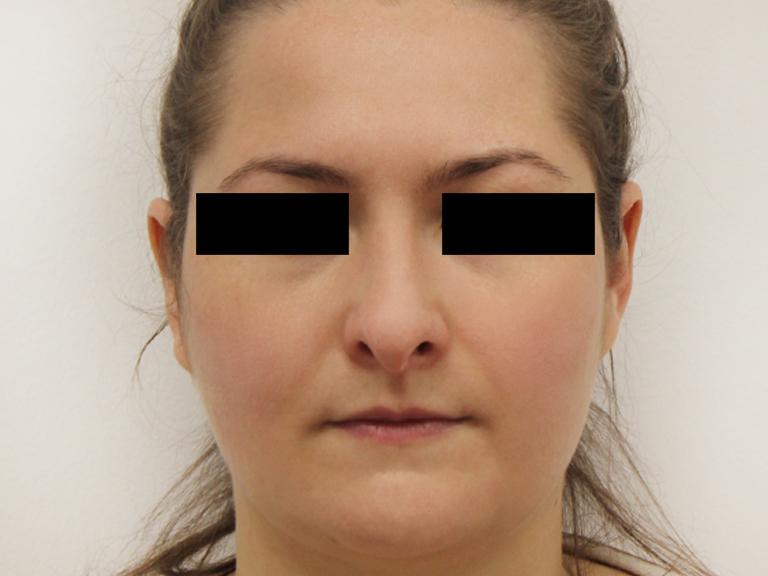 Nose correction - patient 8