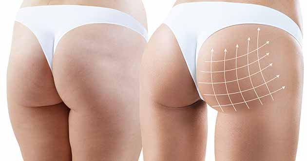 Enlarging the buttocks with implants