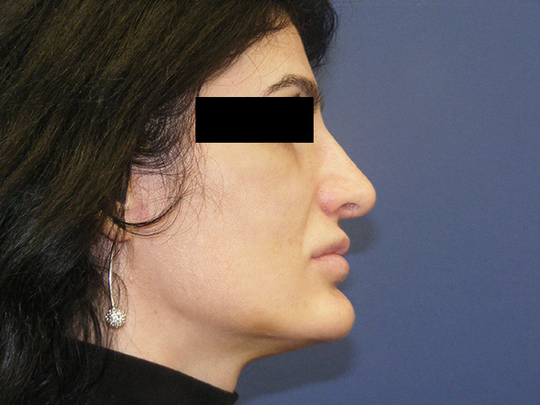 Korekcija nosa posle - pacijent 9