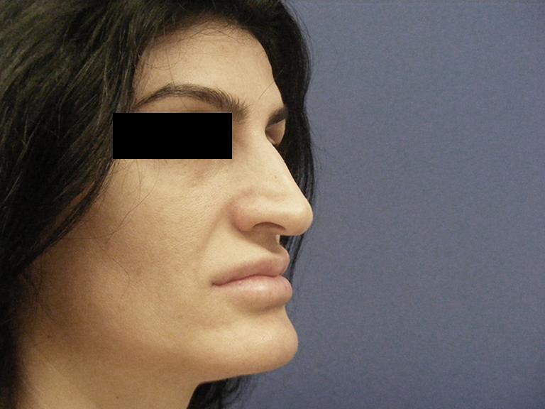 Korekcija nosa pre 1 - pacijent 9