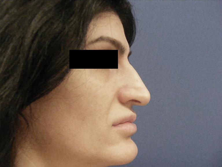Korekcija nosa pre - pacijent 9