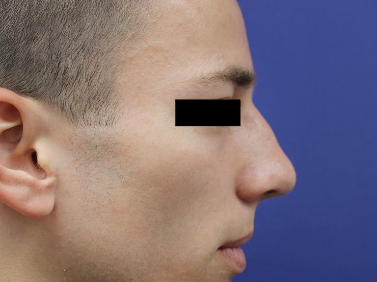 korekcija nosa -- posle