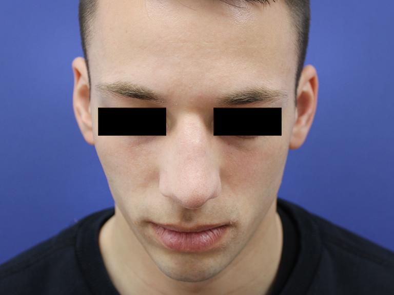 korekcija nosa --- posle