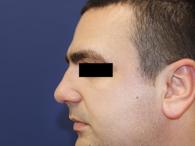 korekcija nosa - posle