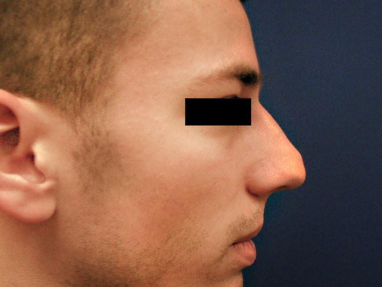korekcija nosa -- pre