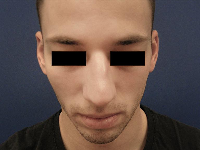 korekcija nosa --- pre
