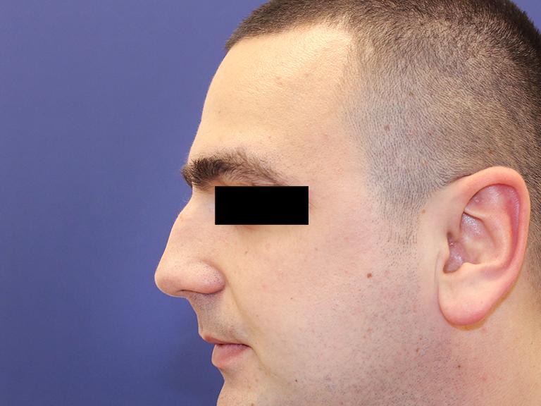 korekcija nosa - pre