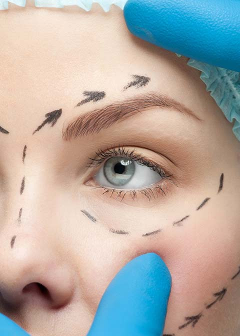 Drooping Eyelids surgery