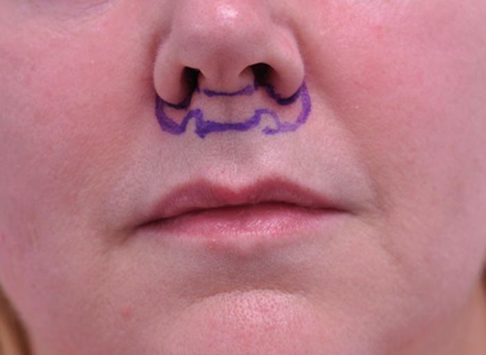 bullhorn lift isecanje kože ispod nosa