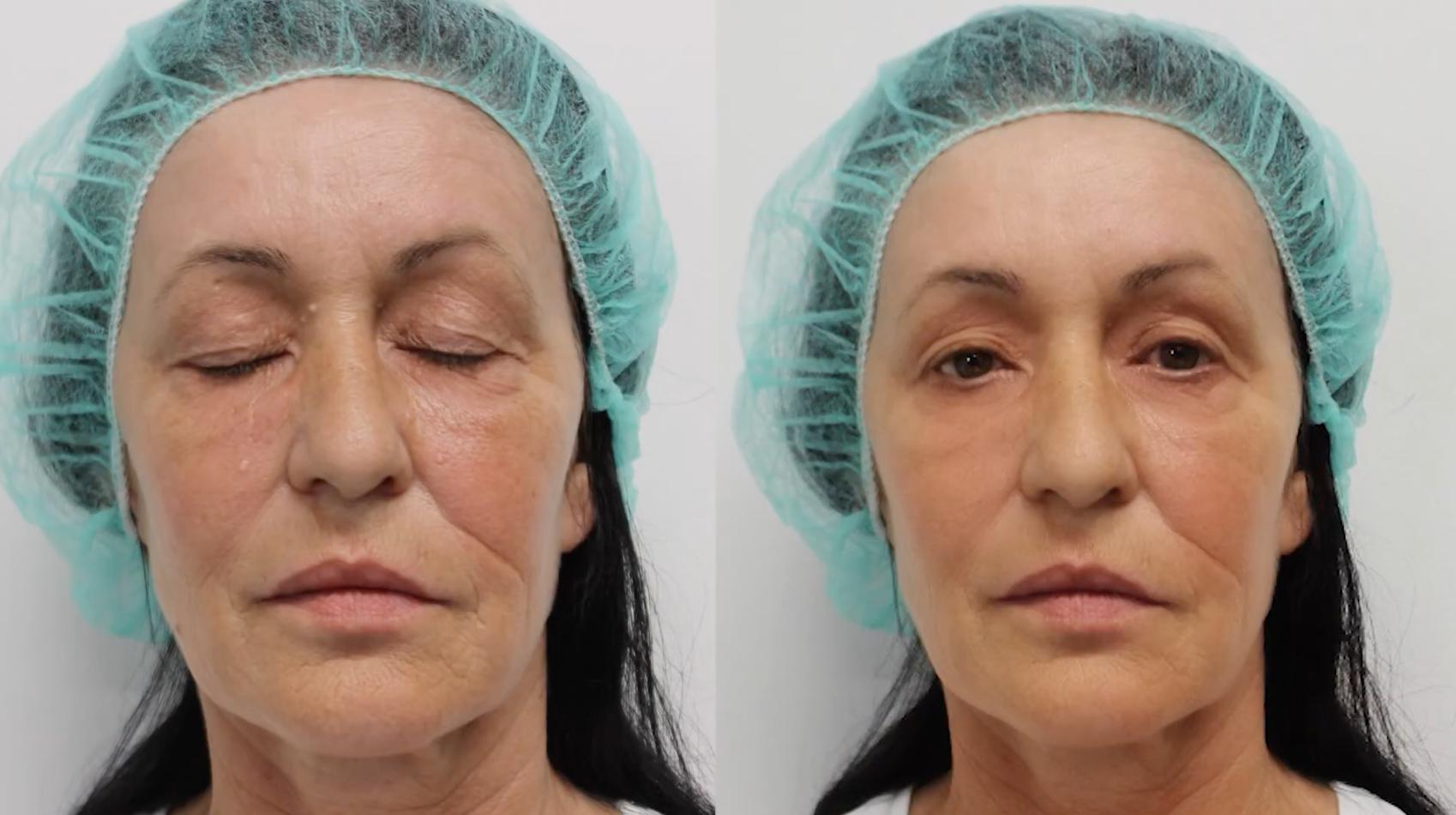 Pacijent pre i nakon laserskog pilinga kože