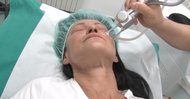 laserski piling lica - atlas opšta bolnica