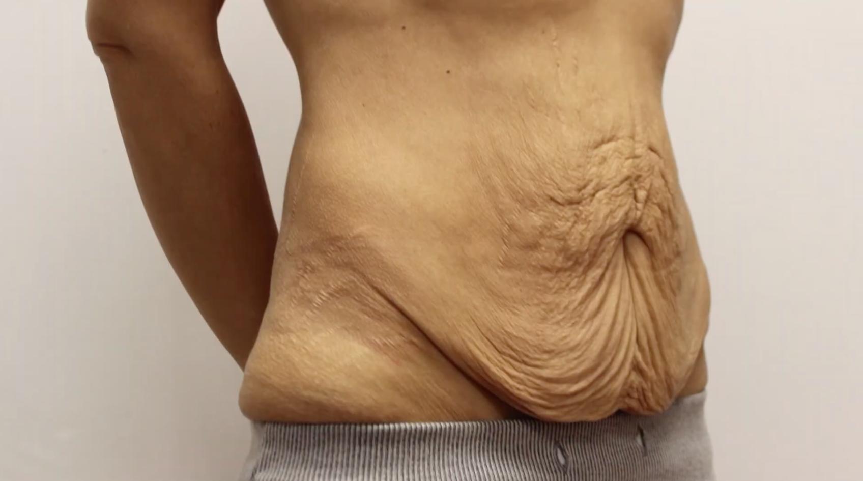 Stomak pre abdominoplastike